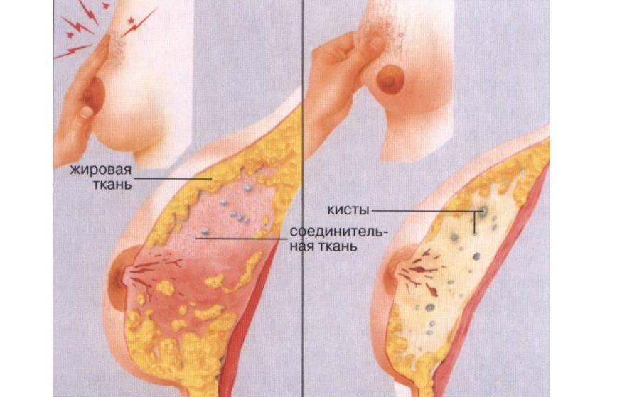 из чего состоит грудь