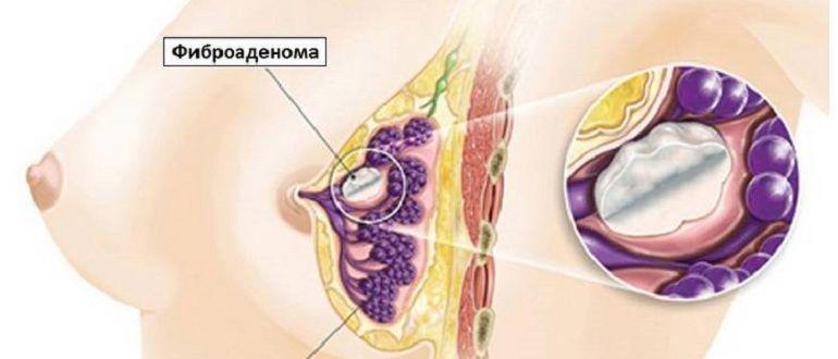 доброкачественное уплотнение в груди