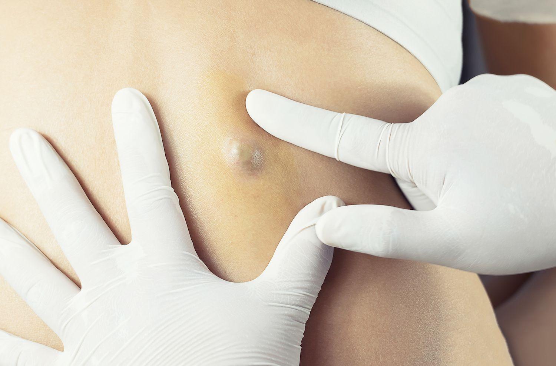 воспаление сальной железы