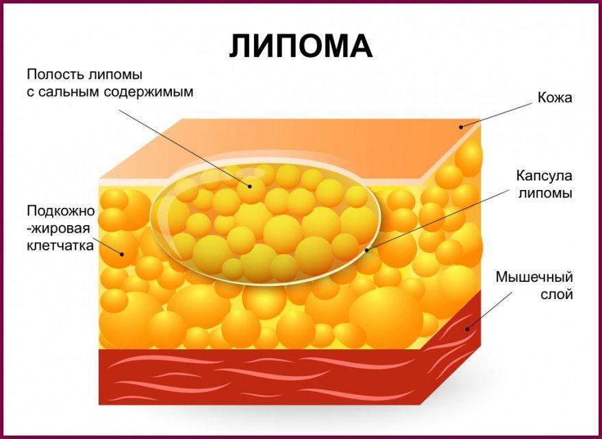 что представляет липома молочной железы