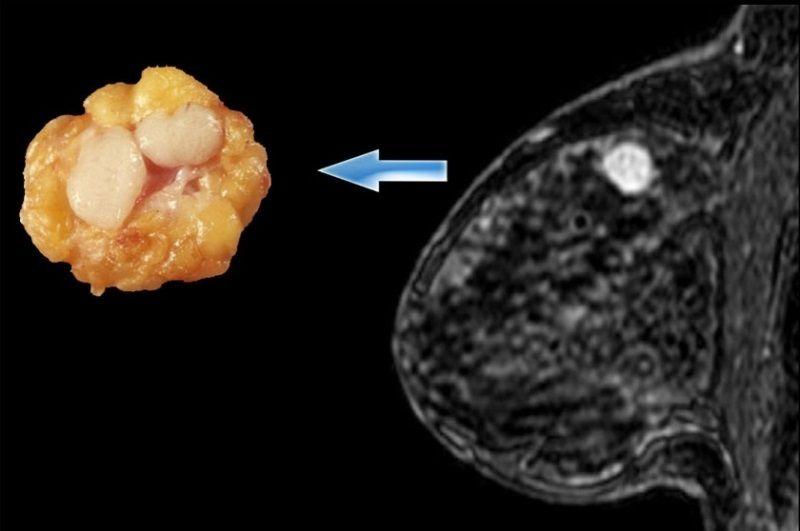 фиброаденоматоз молочной железы