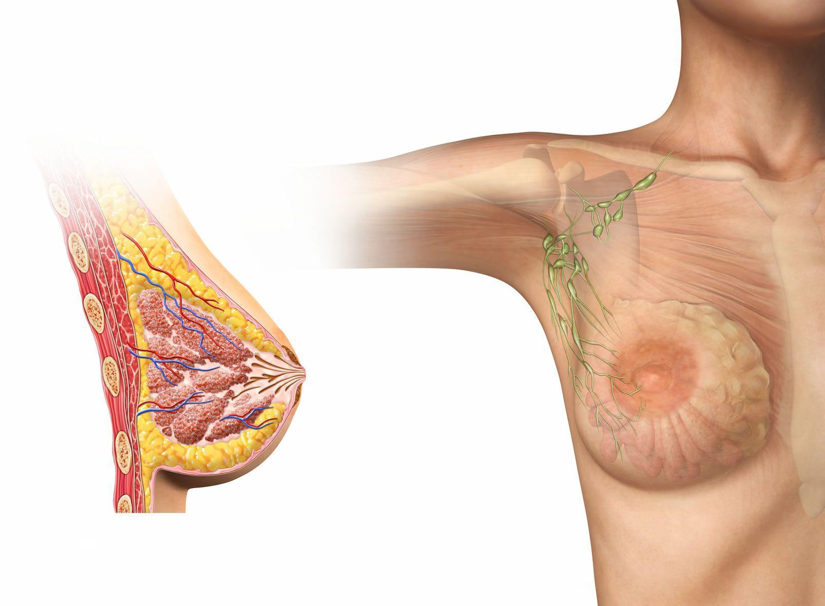 лимфоузлы в молочной железе