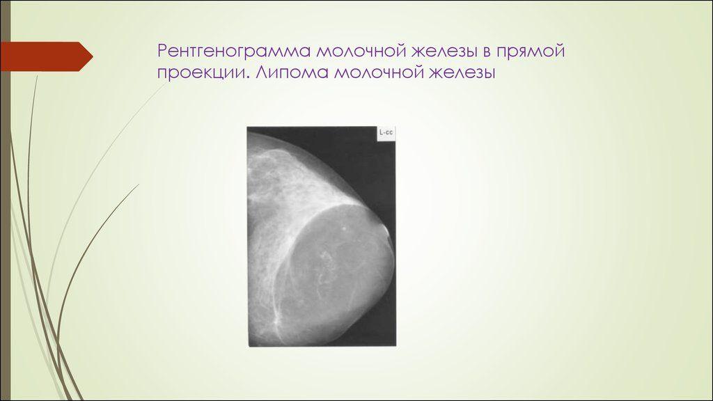 узи липомы в молочной железе