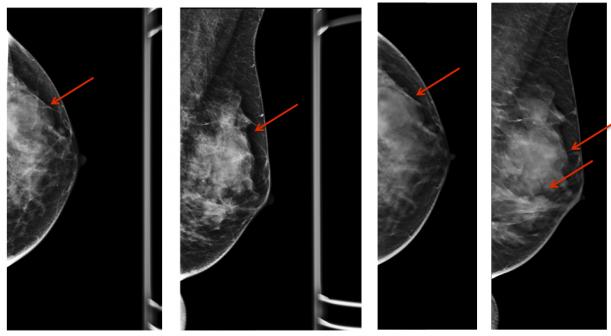 изменения в груди при мастопатии
