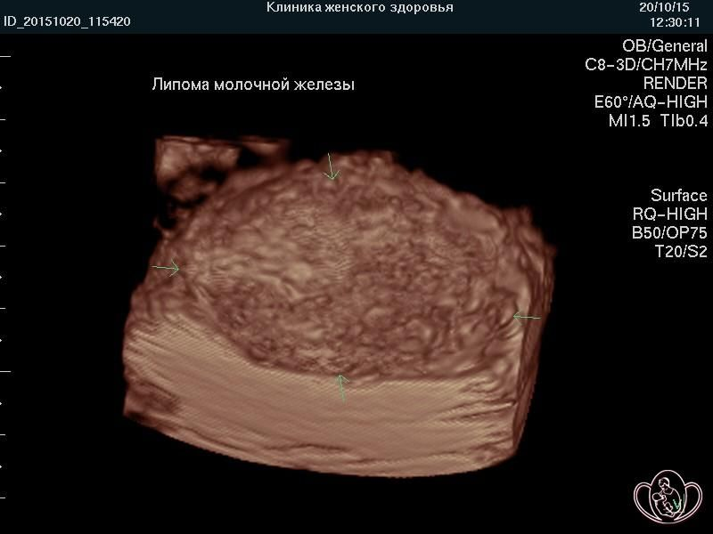снимок липомы молочной железы