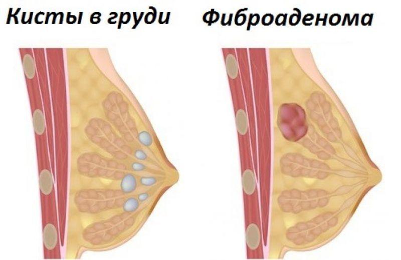 фиброаденома и кисты в груди