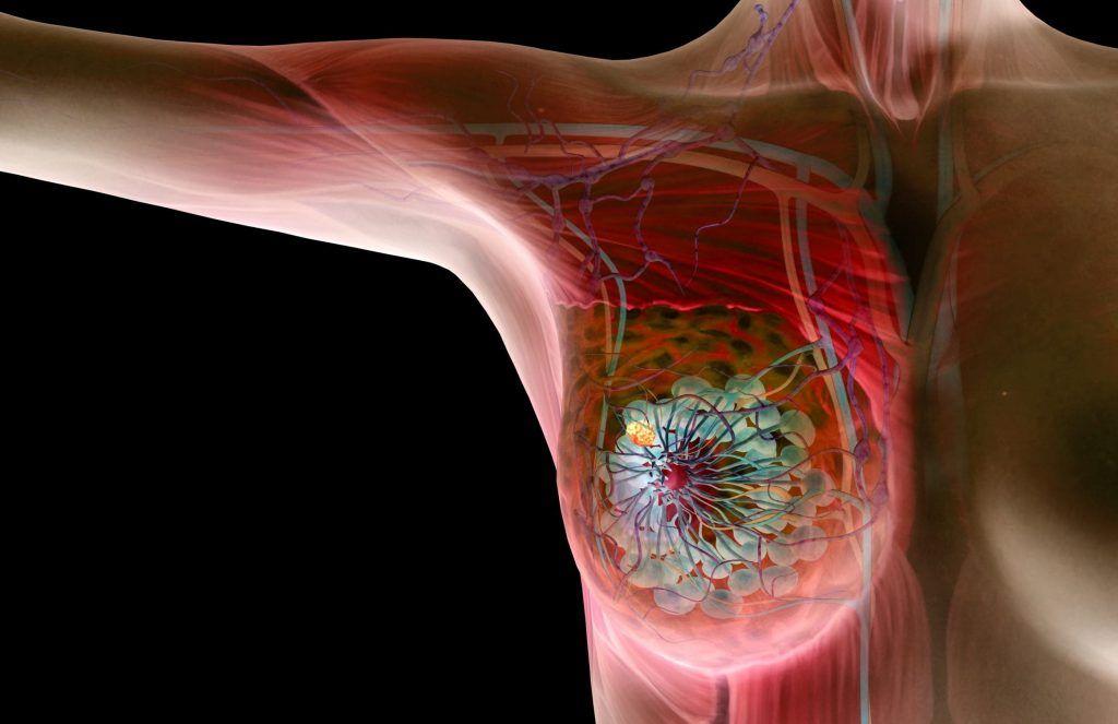 Диффузные изменения молочных желез - Гинеколог