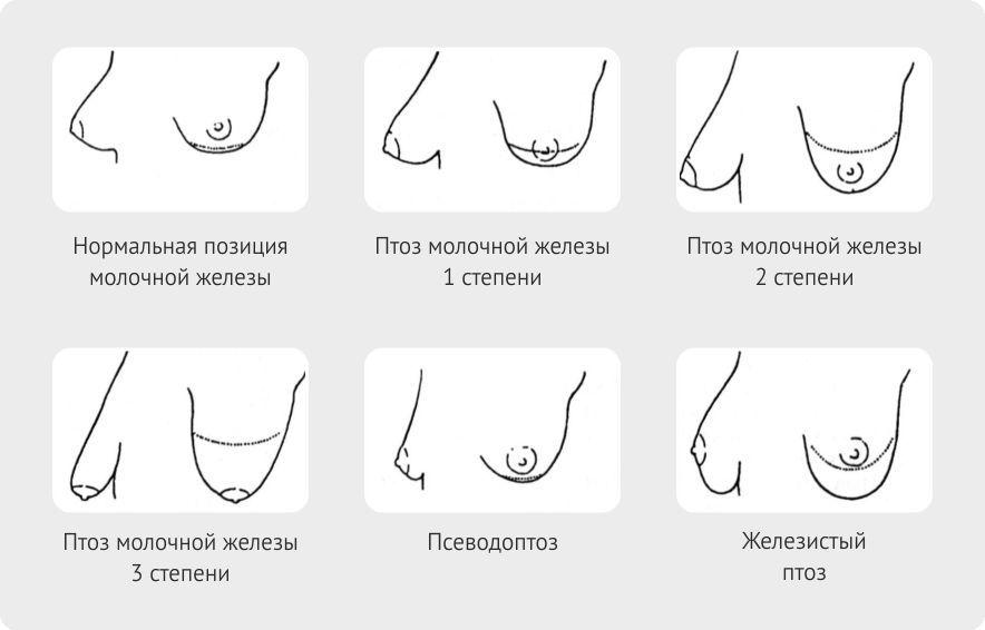 Доктор картинки разных форм сосков ебут презервативе