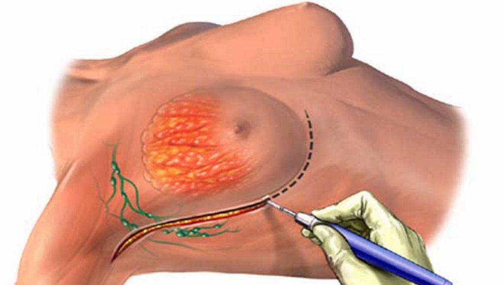 разрез скальпелем под грудью при операции