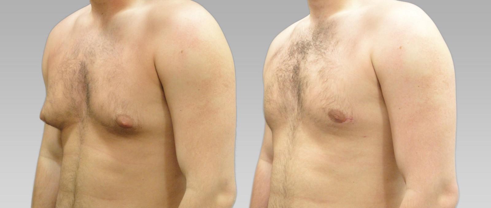 увеличение молочной железы у мужчин