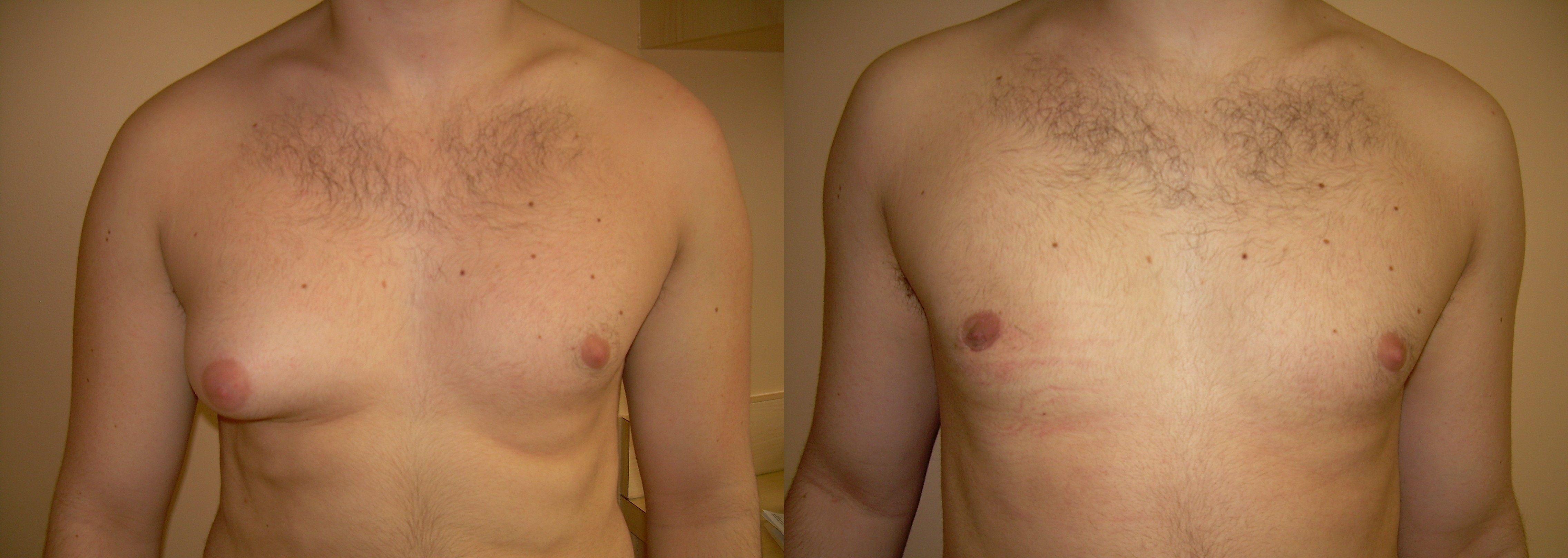 фото до и после операции по устранению гинекомастии