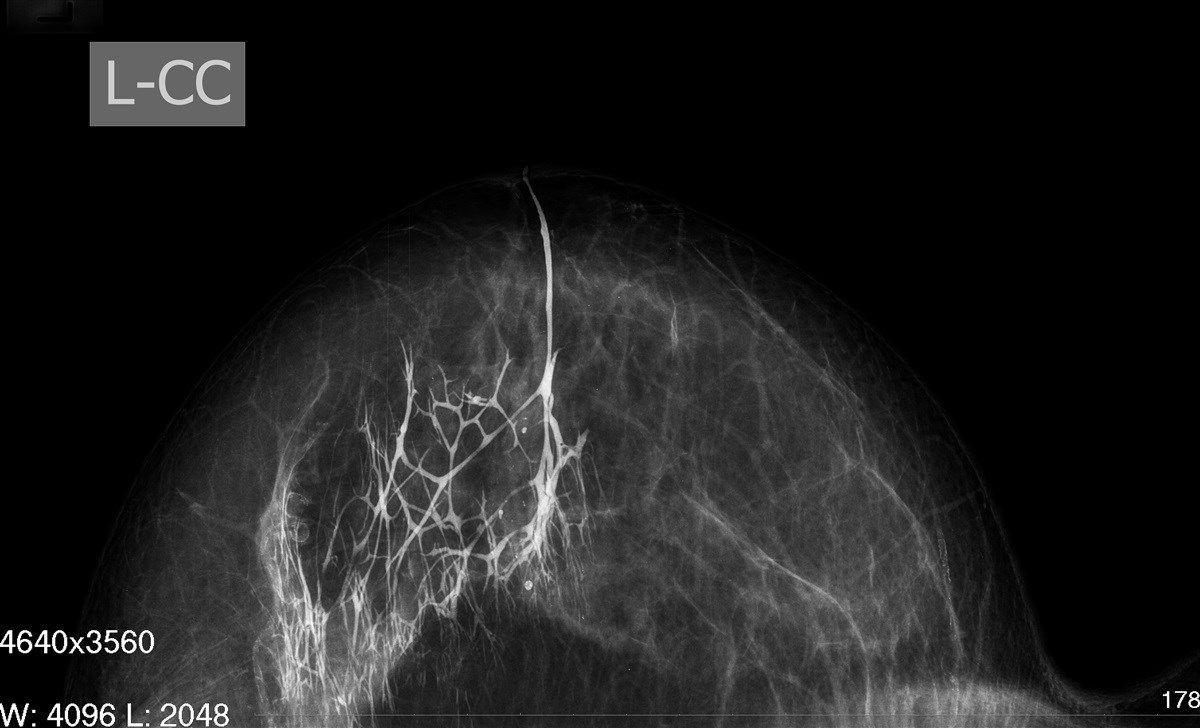 дуктография молочной железы снимок