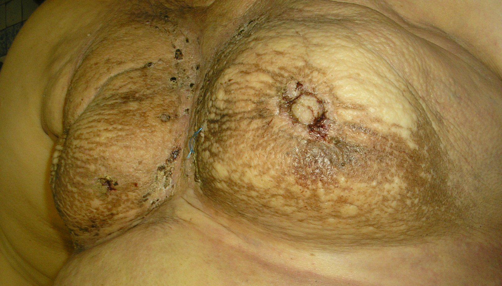 симптомы рака сосков