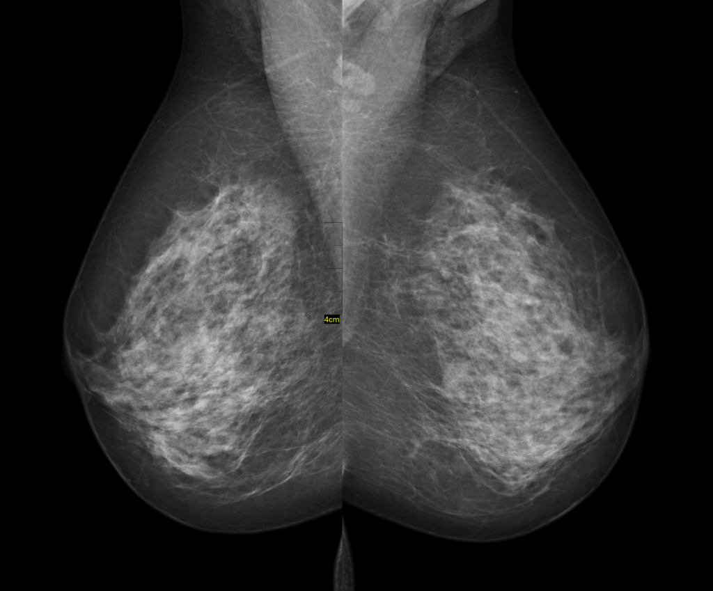 разрастание железы в груди рентген