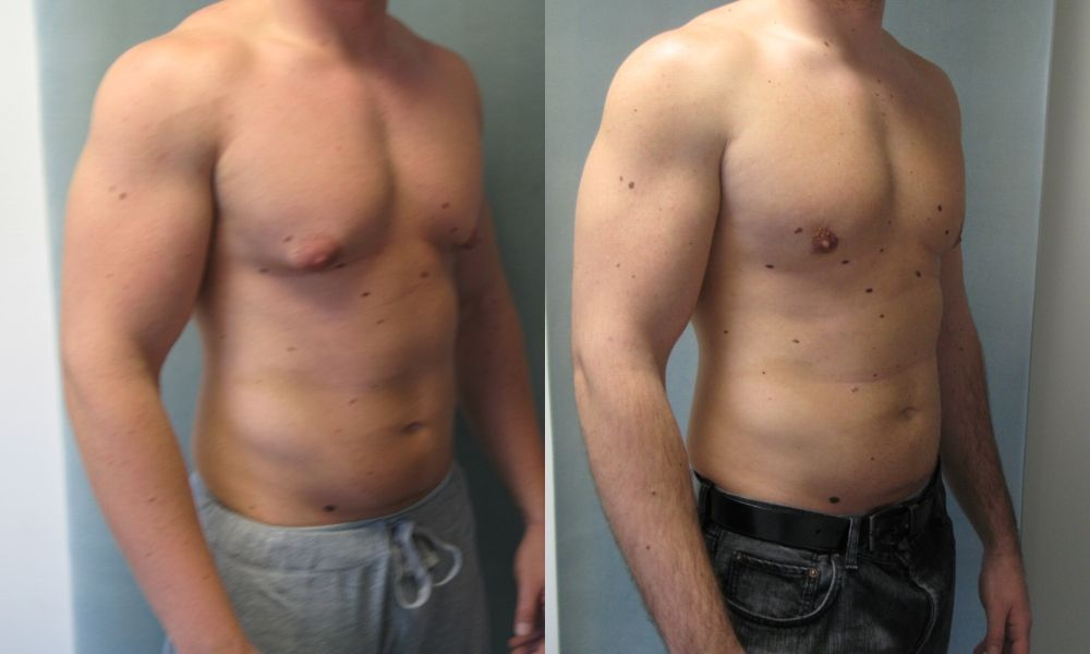 операция по уменьшению груди у мужчин до и после