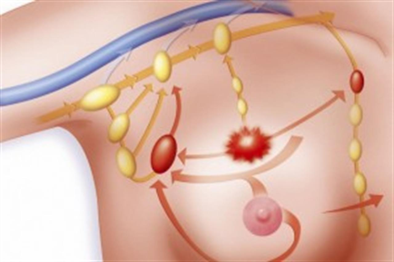 воспаление лимфоузлов на груди