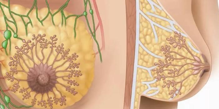 симптомы фиброматоза