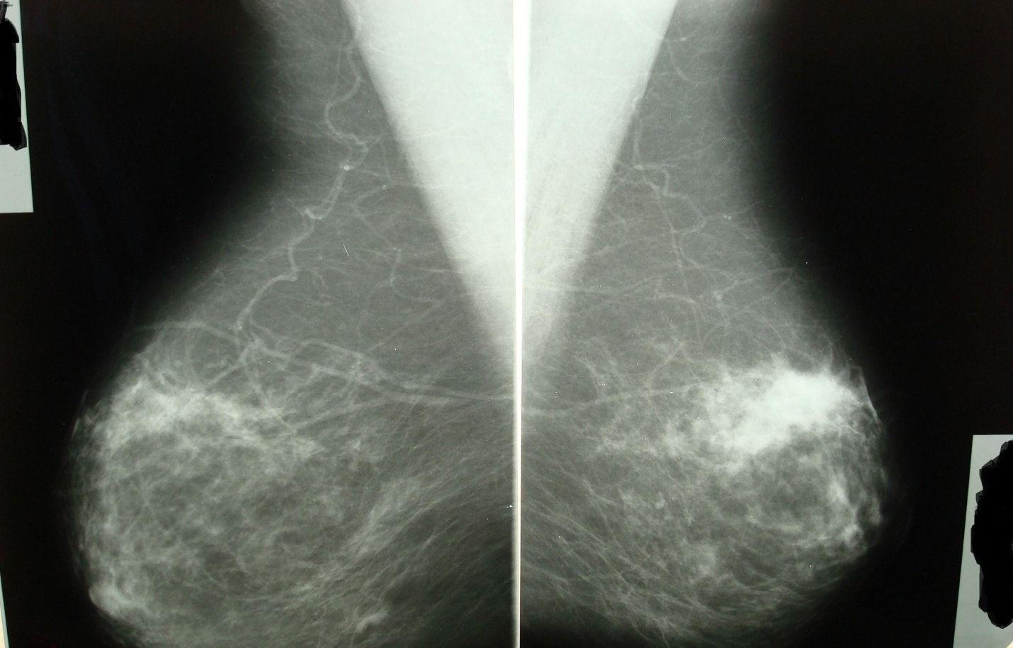 аденоз молочной железы на снимке