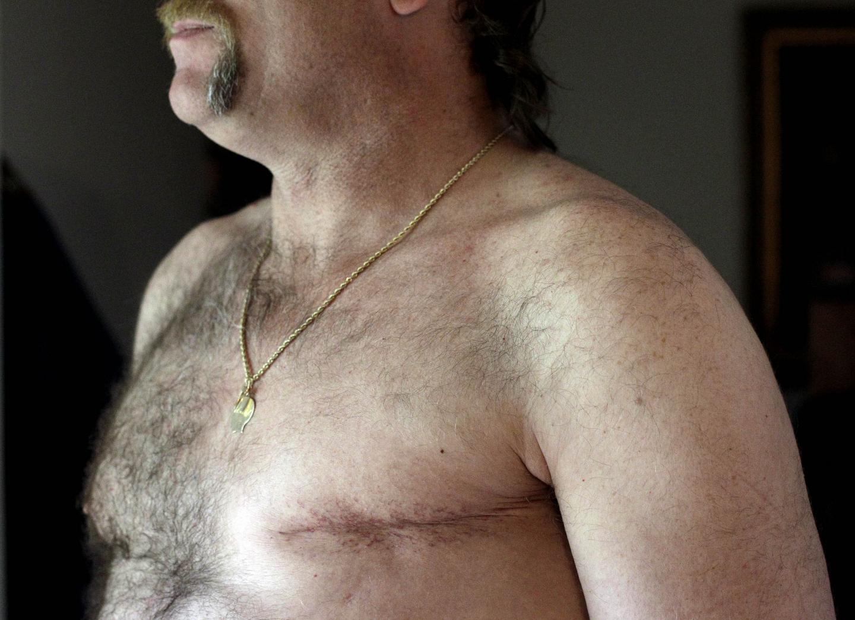 мужчина после удаления молочной железы