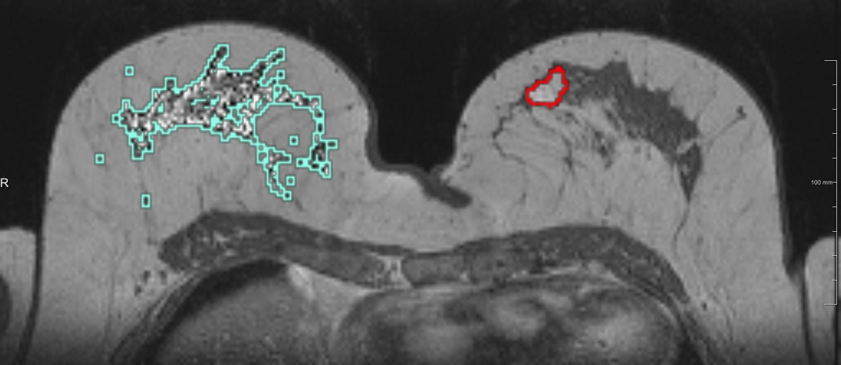 рентген молочной железы с развитием онкологии