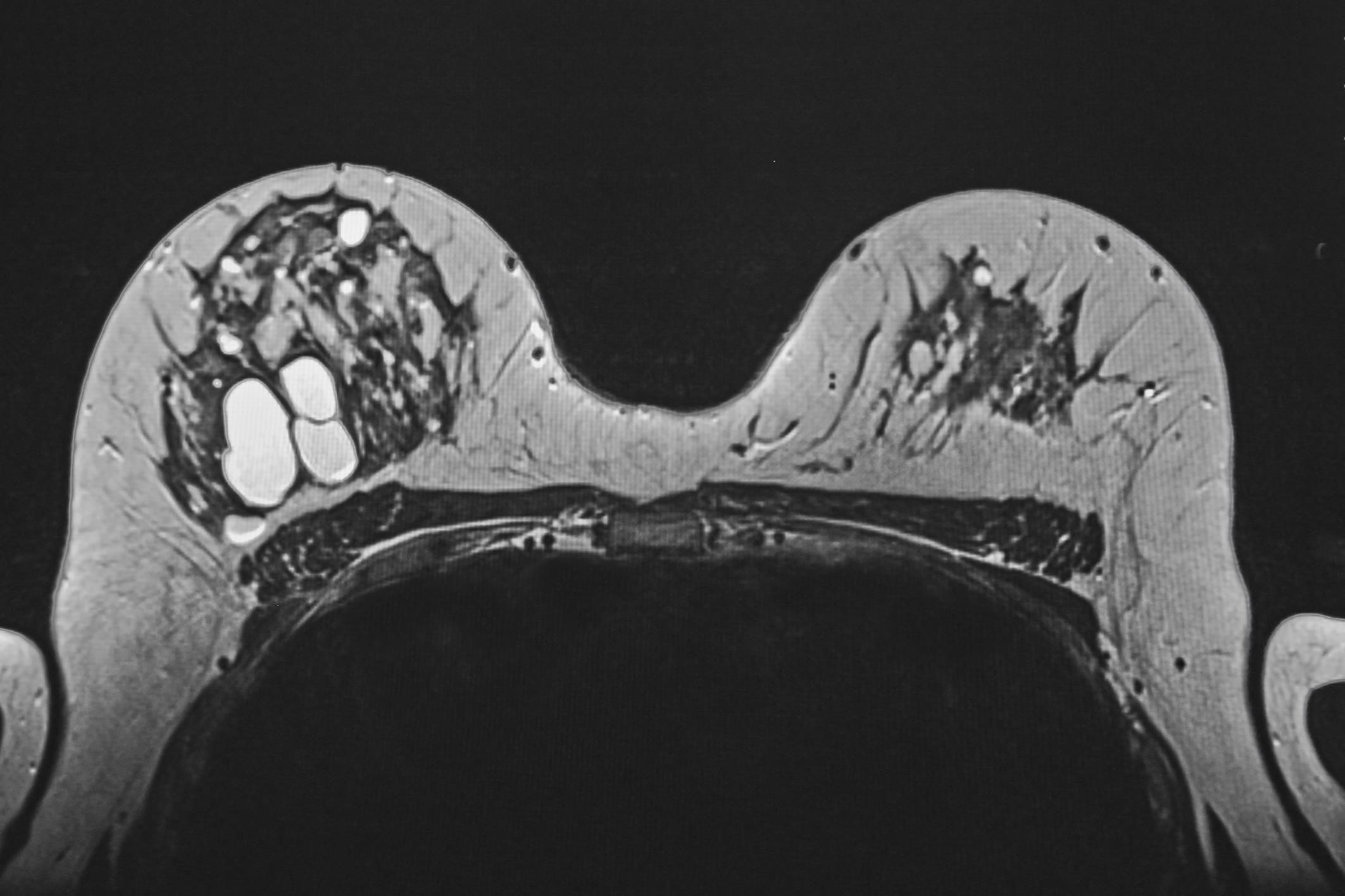 киста на маммографии