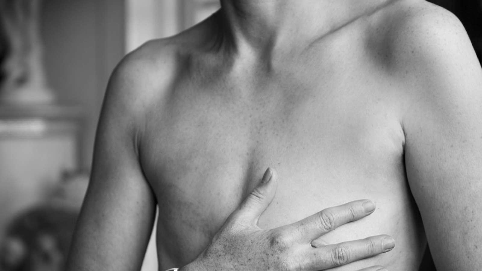 шрам после удаления молочной железы у мужчина