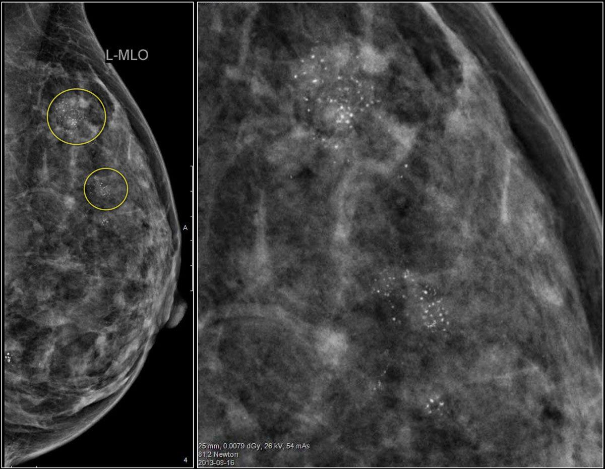 Кальцинаты в молочной железе у женщины: виды, способы лечения
