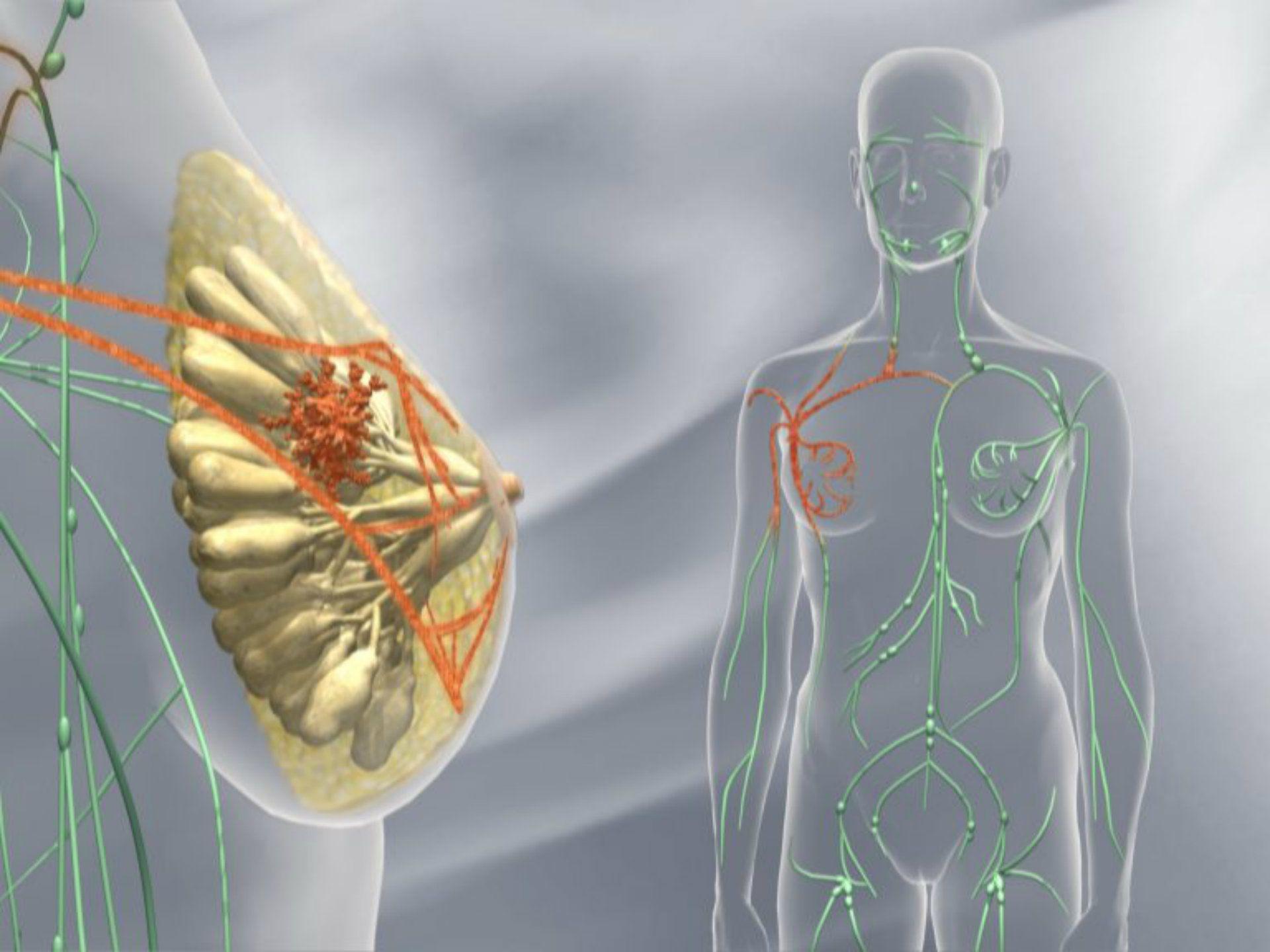 Опухоль под молочной железой