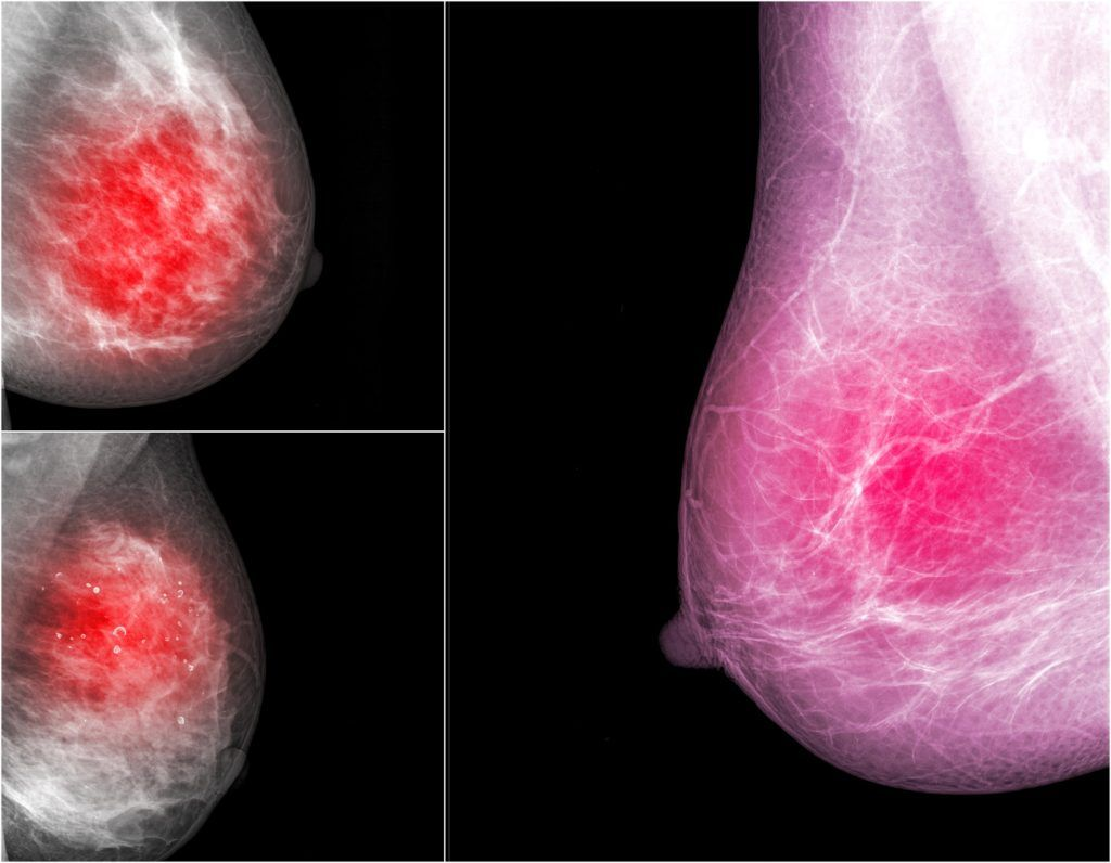 узловые образования молочной железы на рентгене