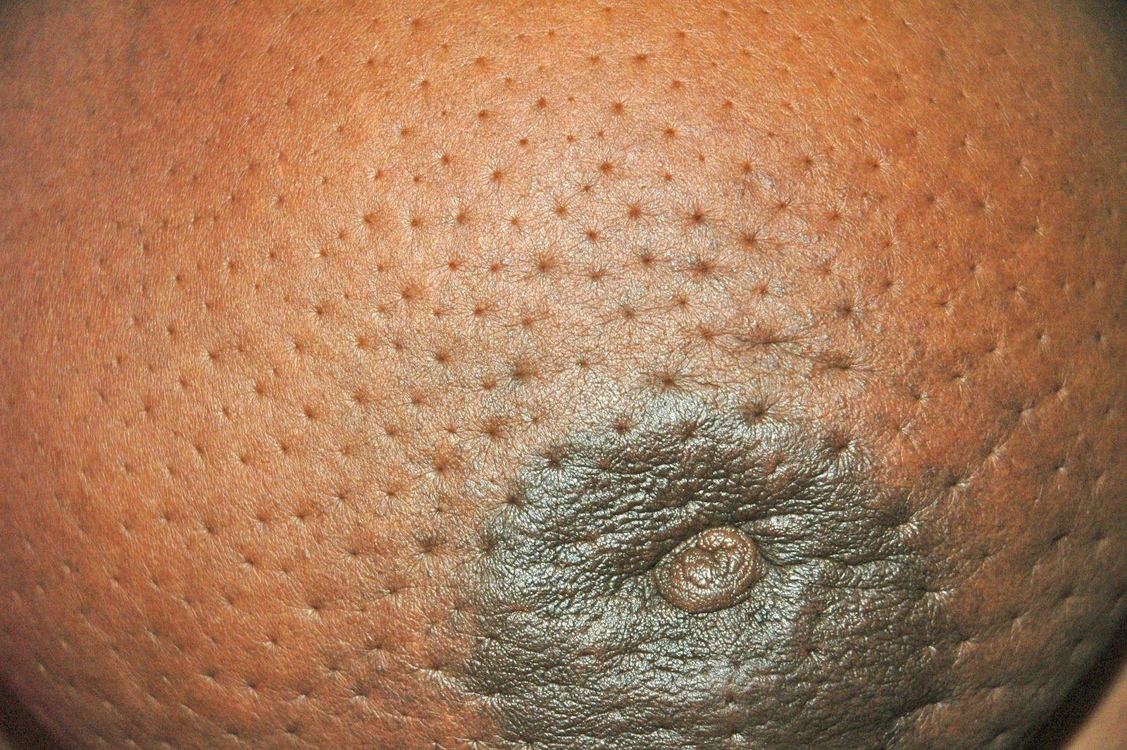 эффект апельсиновой корки на груди