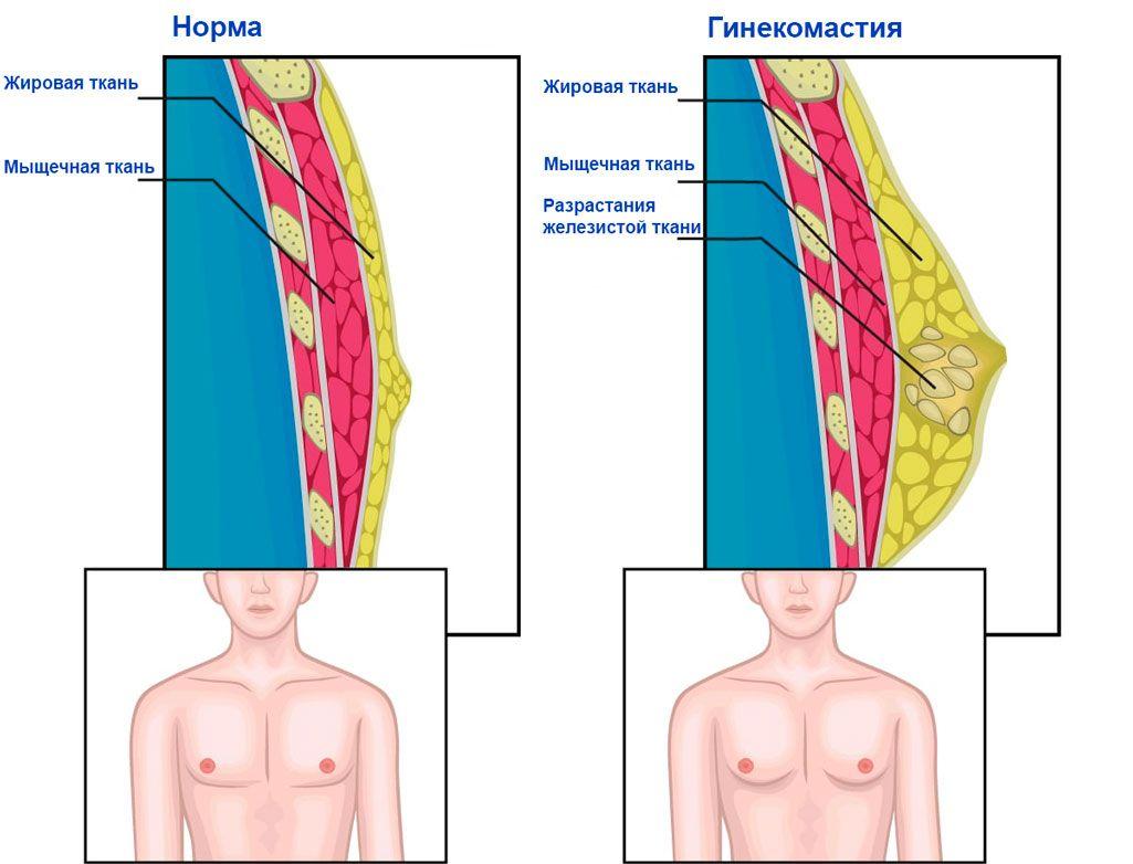 схема что такое гинекомастия