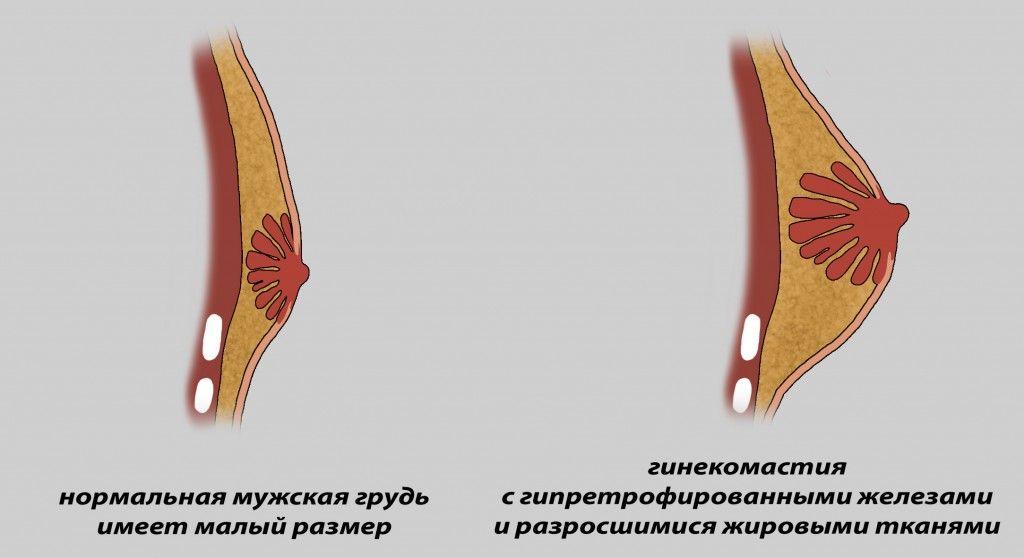 нормальная грудь и грудь с гинекомастией