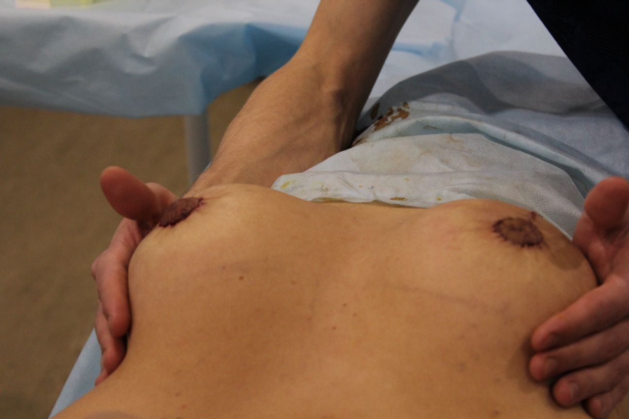 женская грудь после операции
