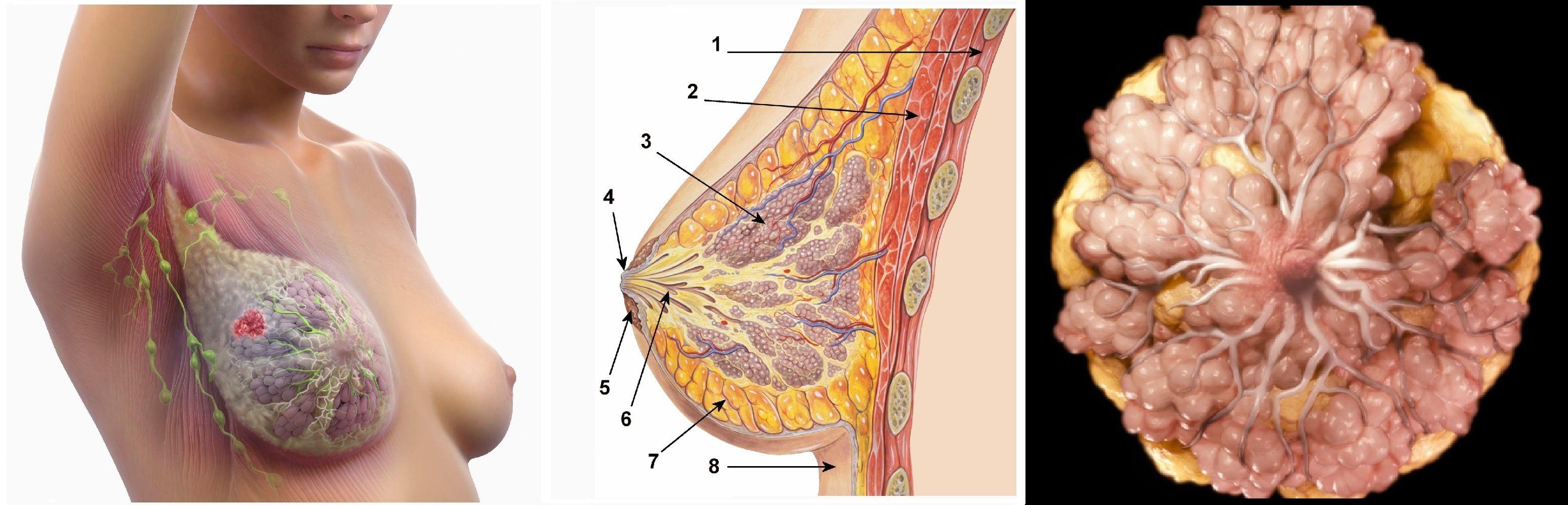 Большие груди в онкологии