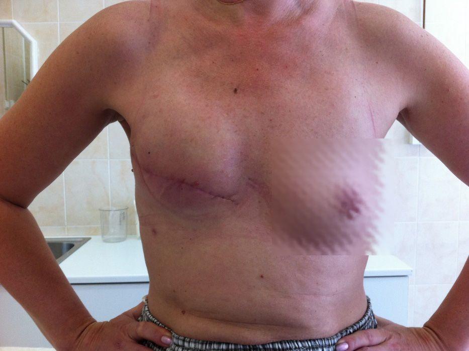грудь женщины после секторальной резекции