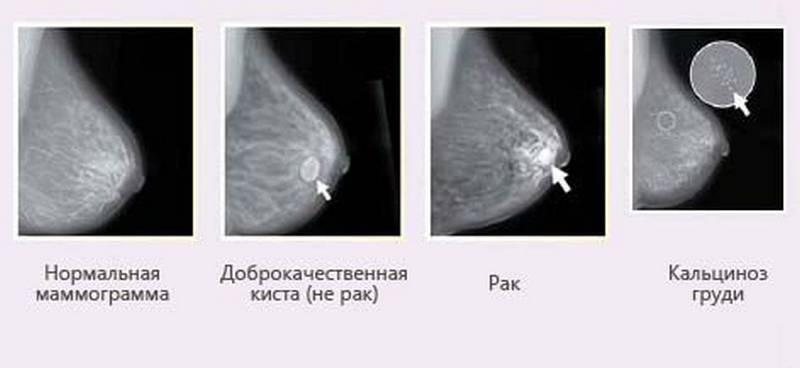мастопатия на рентгене