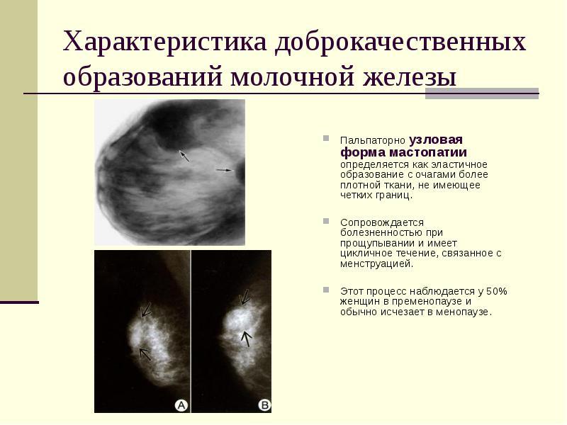 мастопатия симптомы и внешний вид