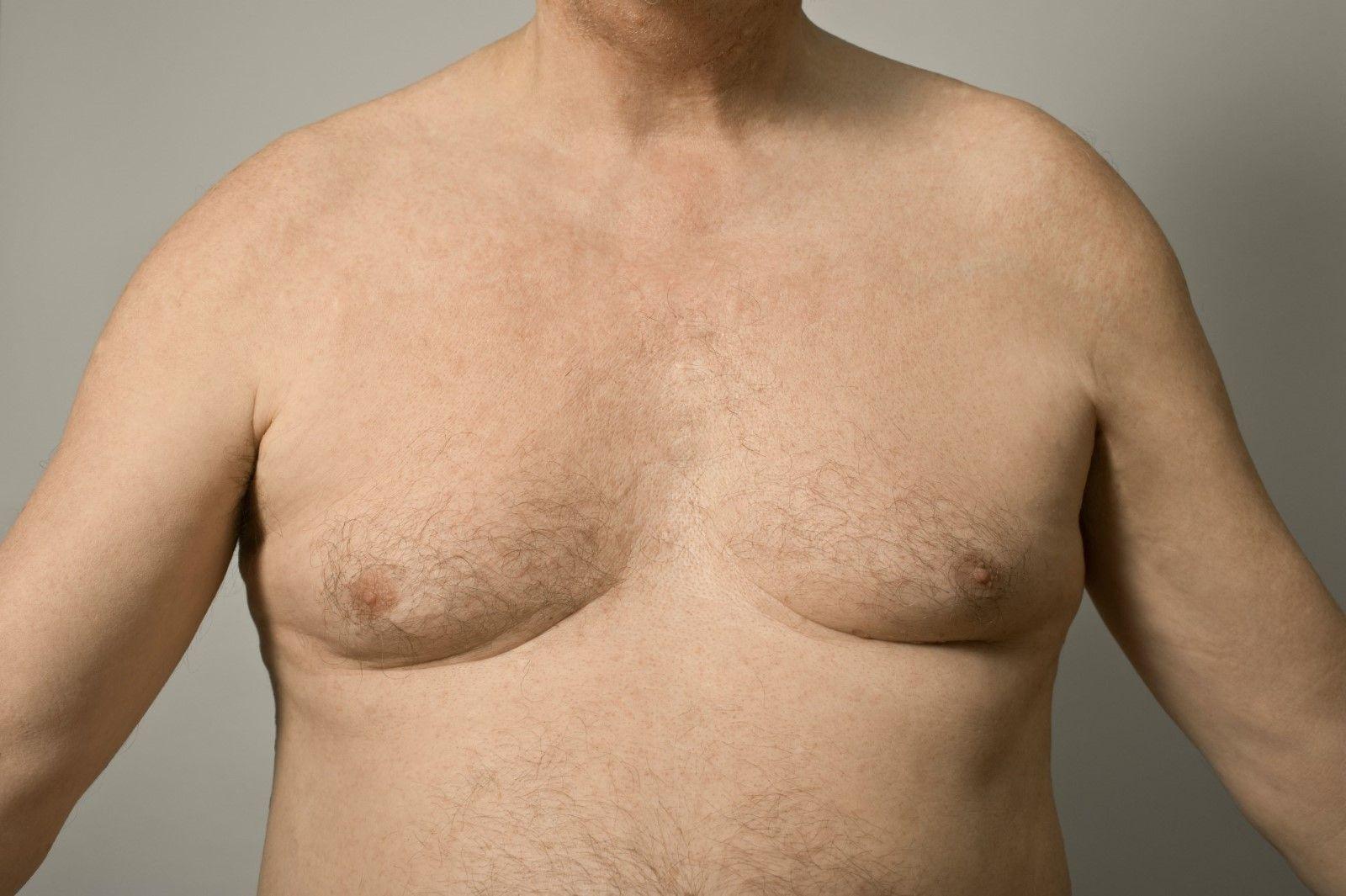 мужчина с обвисшей грудью