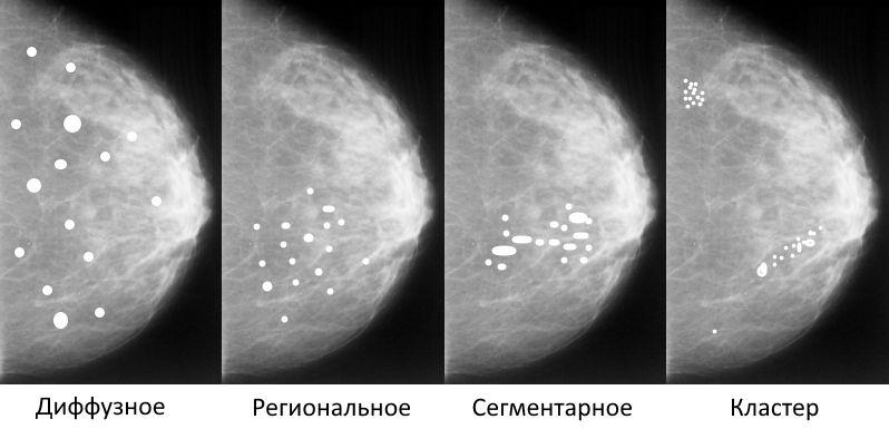 варианты распределения кальцинатов в молочной железе