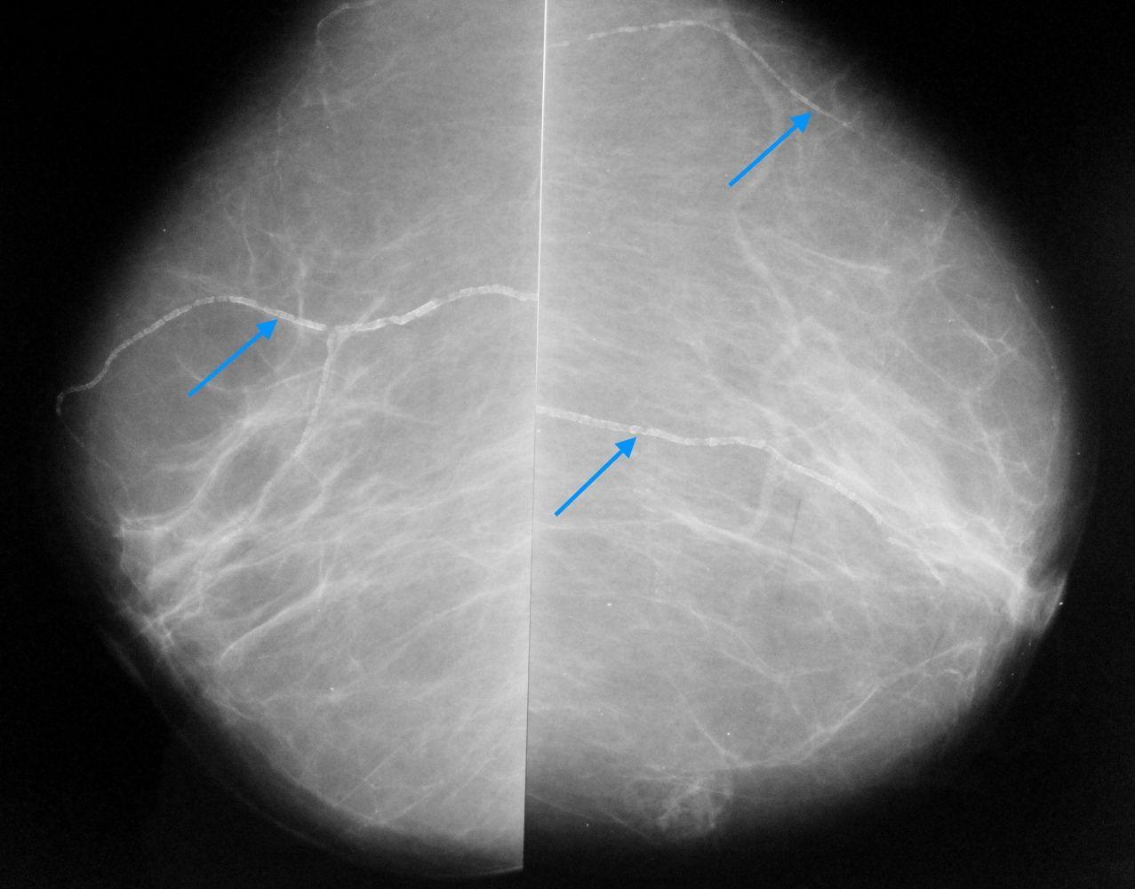 расширение молочных протоков рентген