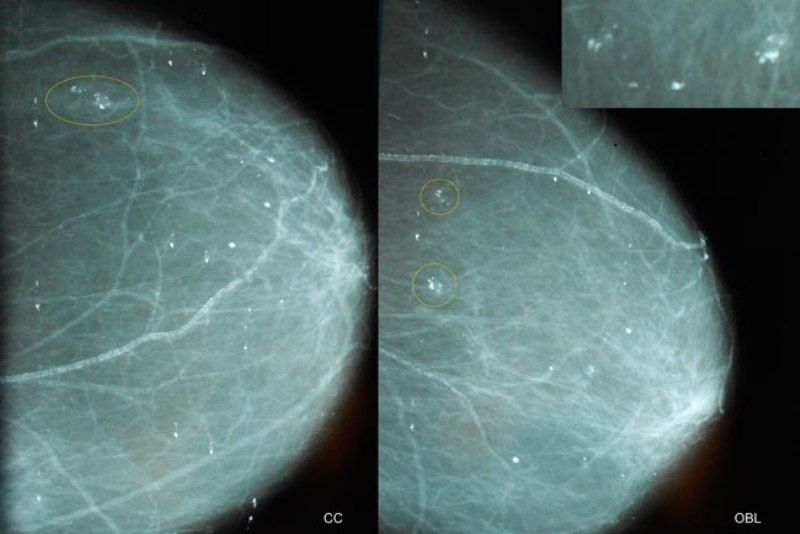 кальцинаты в молочной железе на маммограмме