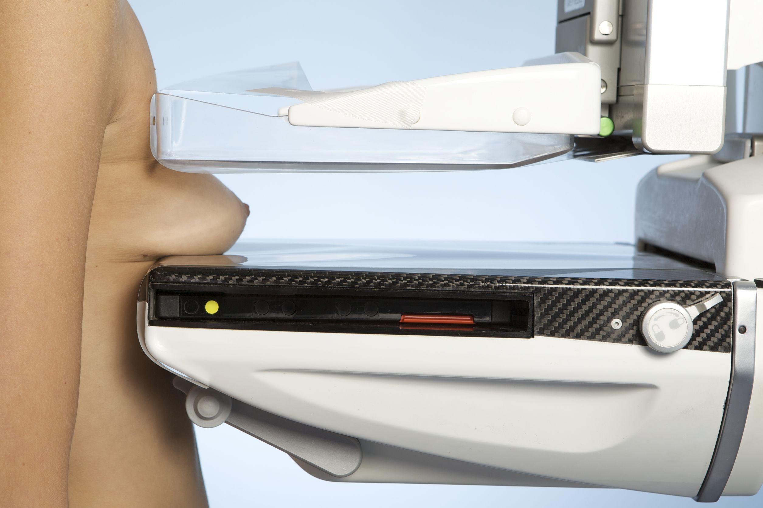 как делают рентген молочной железы