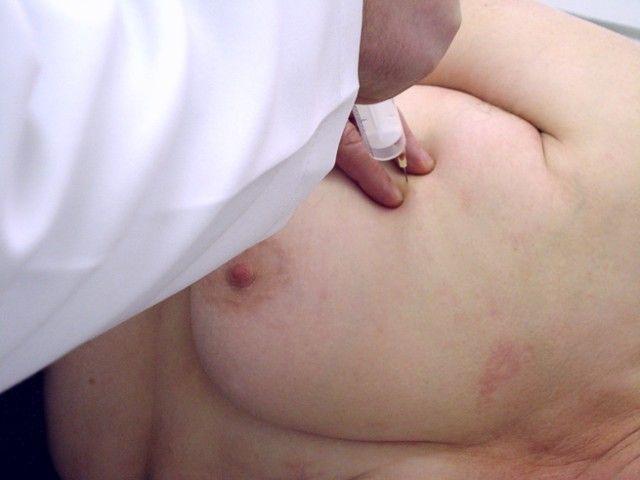 удаление фиброматоза
