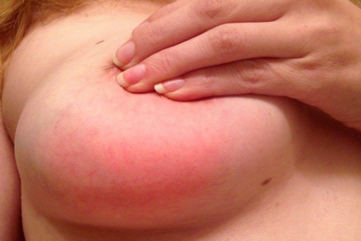 изменение цвета кожи на груди