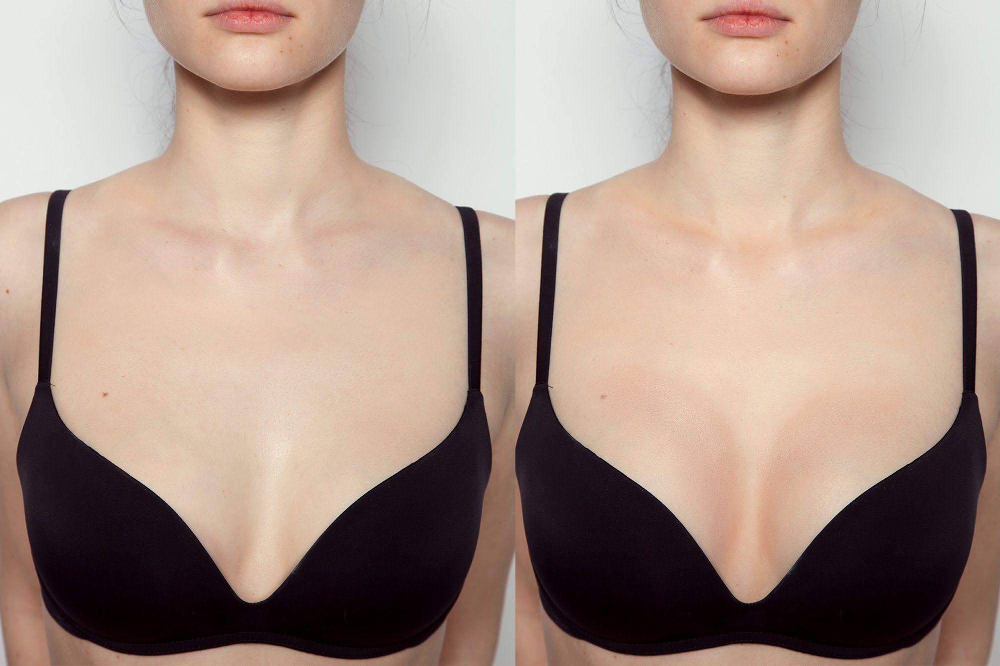 обвисшая и нормальная грудь
