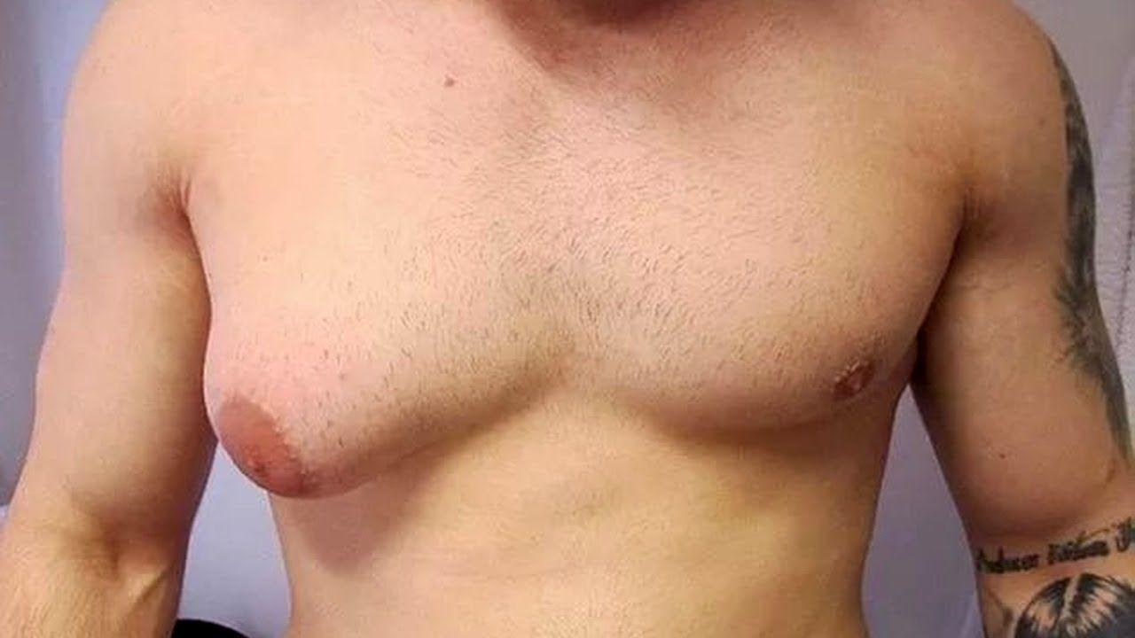 грудь у мужчины разного размера