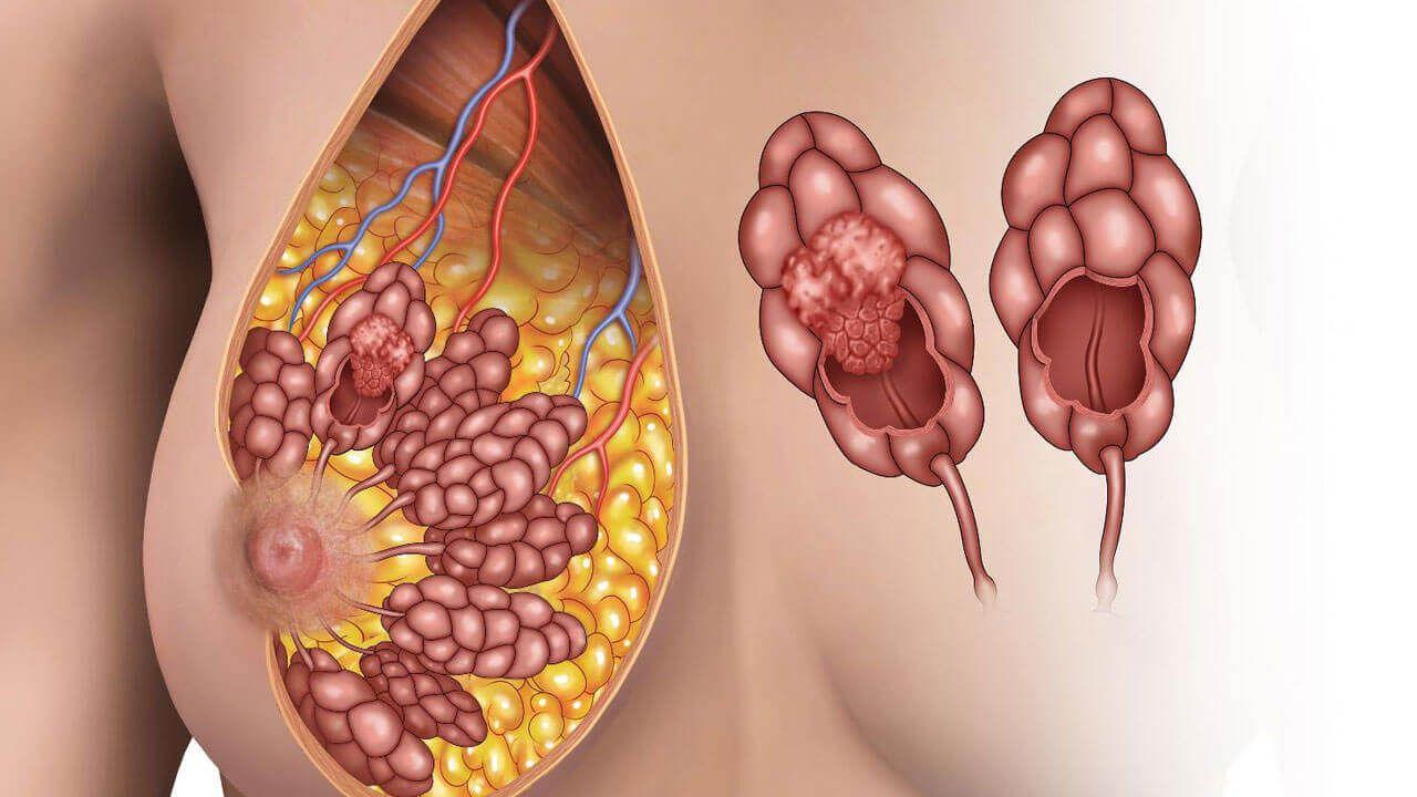 злокачественная опухоль в дольках молочной железы