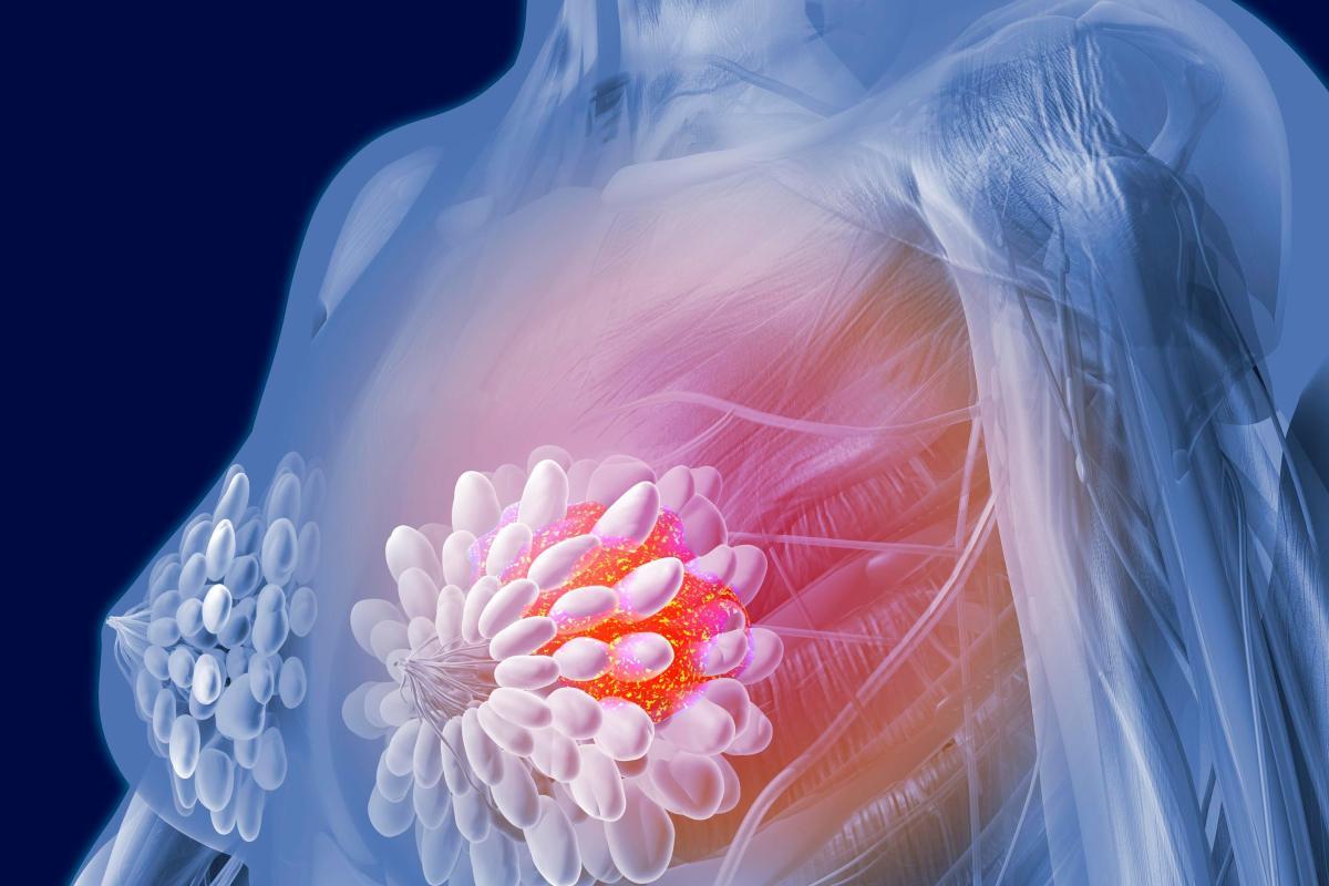 карцинома в молочной железе