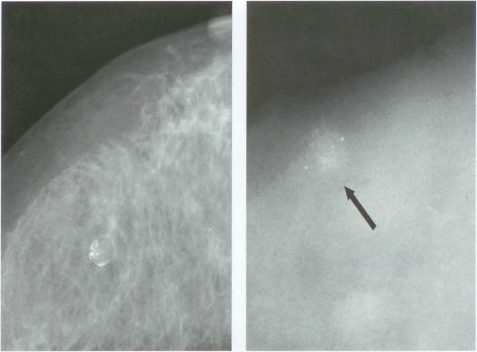 кальцинаты на маммографии