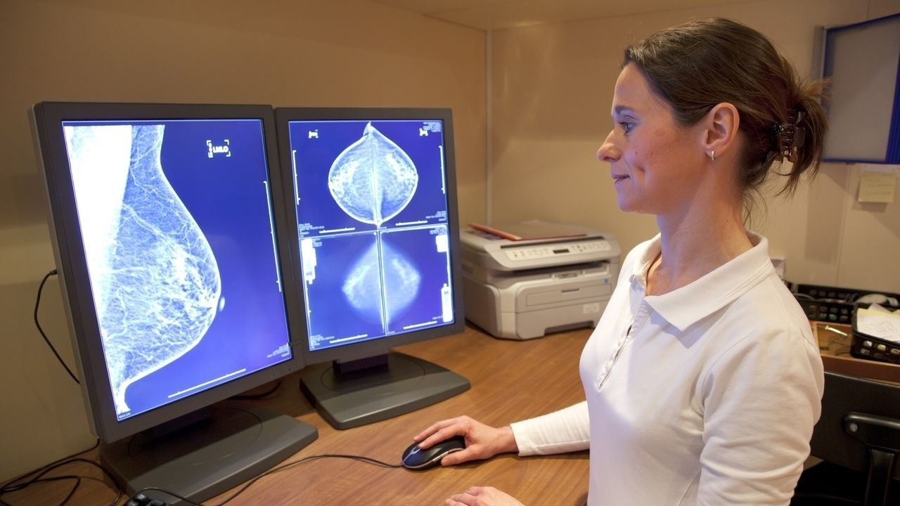 врач просматривает рентгеновские снимки груди на экране монитора
